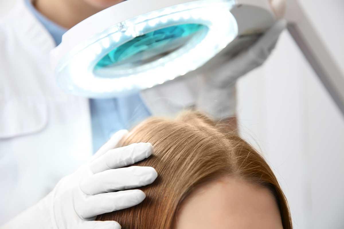 псориазис в окосмената част на главата